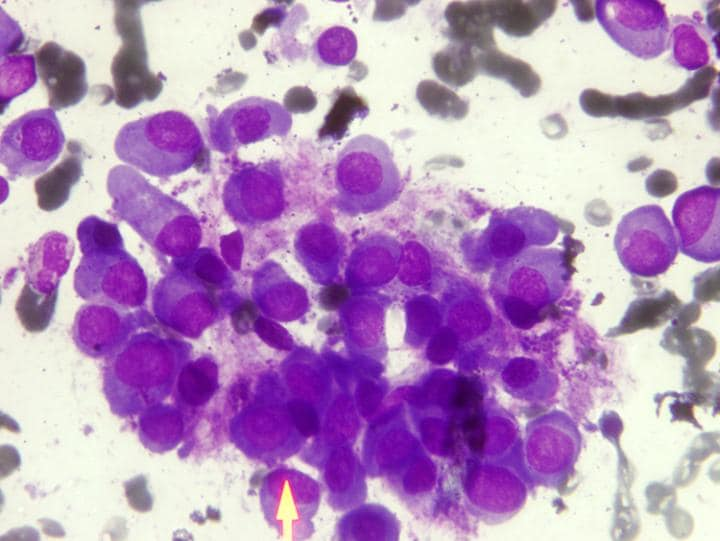 JS116596975-cancer-cells-news-large